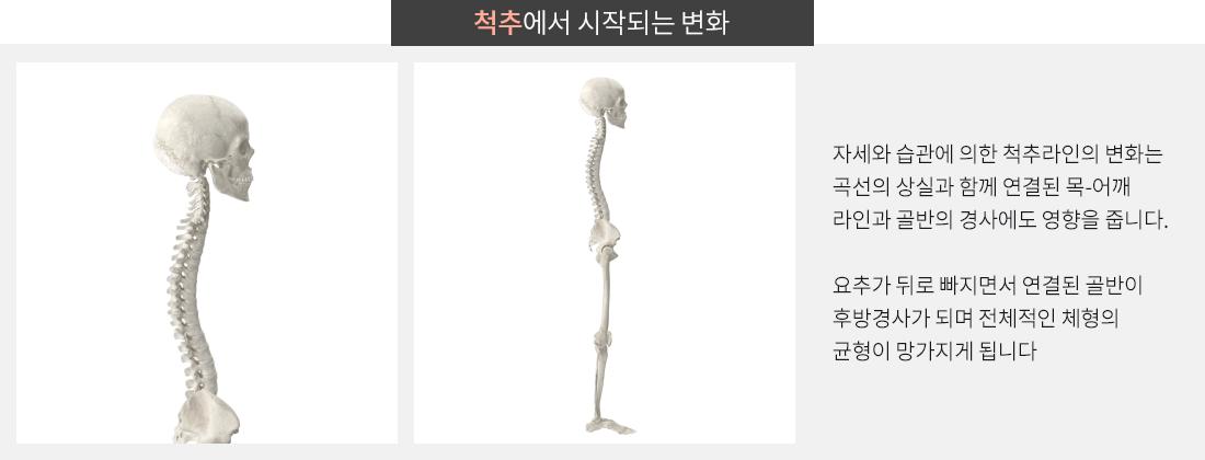 척추에서 시작되는 변화