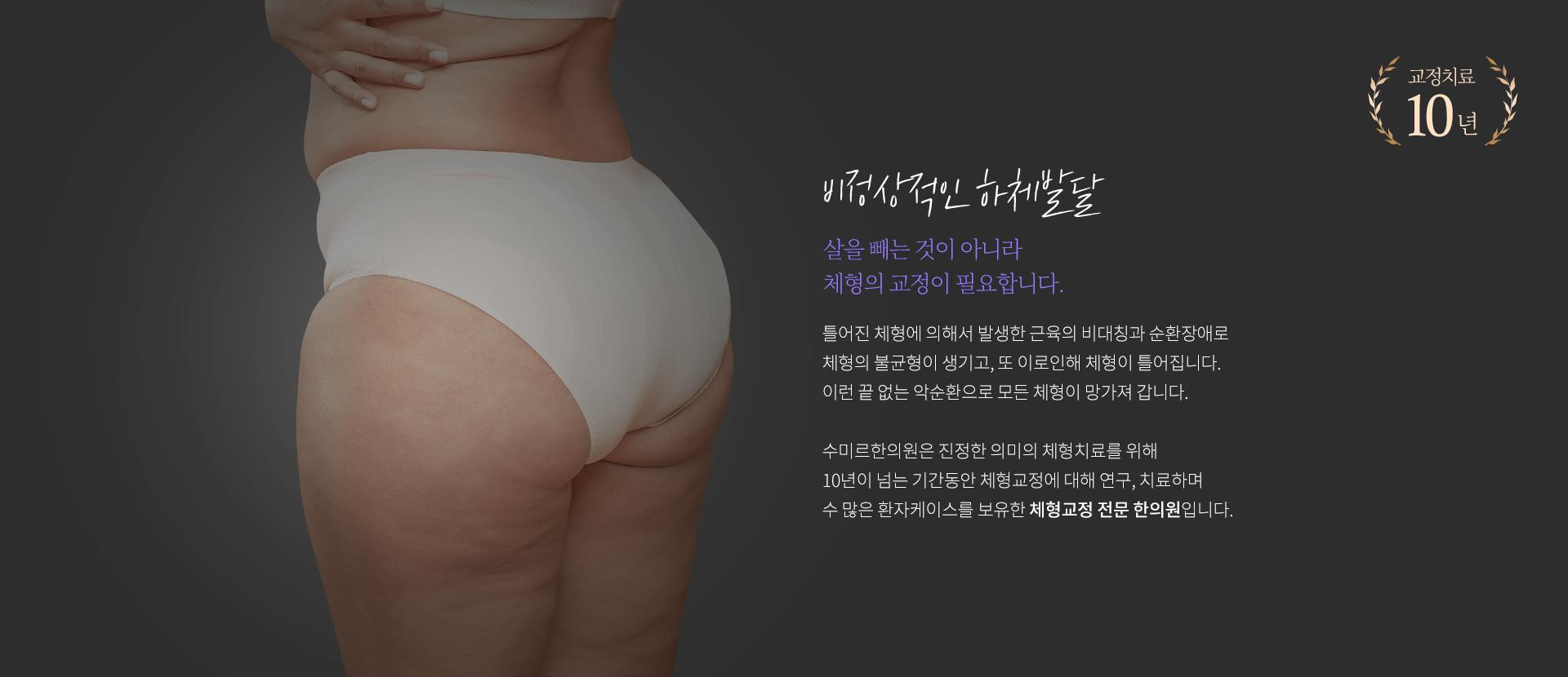 비정상적인 하체발달, 살을 빼는 것이 아니라 체형의 교정이 필요합니다.